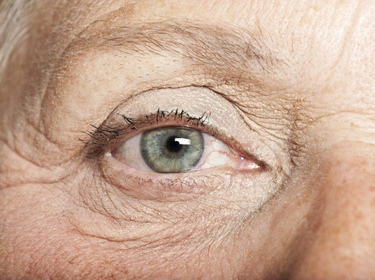 DMLA chez les personnes âgées